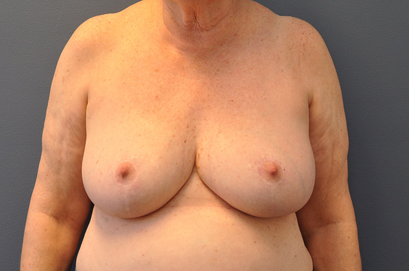 After-Breast_Reduction