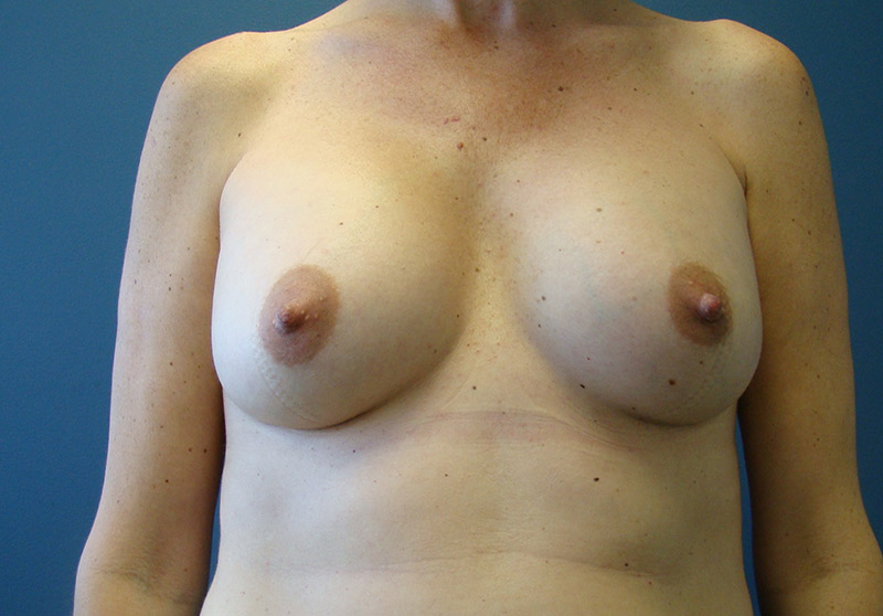 After-Breast_Augmentation
