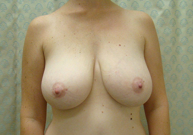 Before-Breast_Reduction