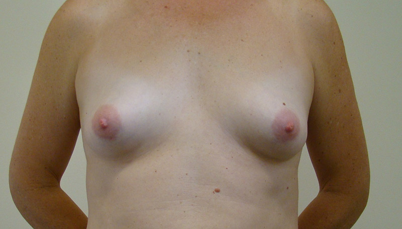 Before-Breast_Augmentation