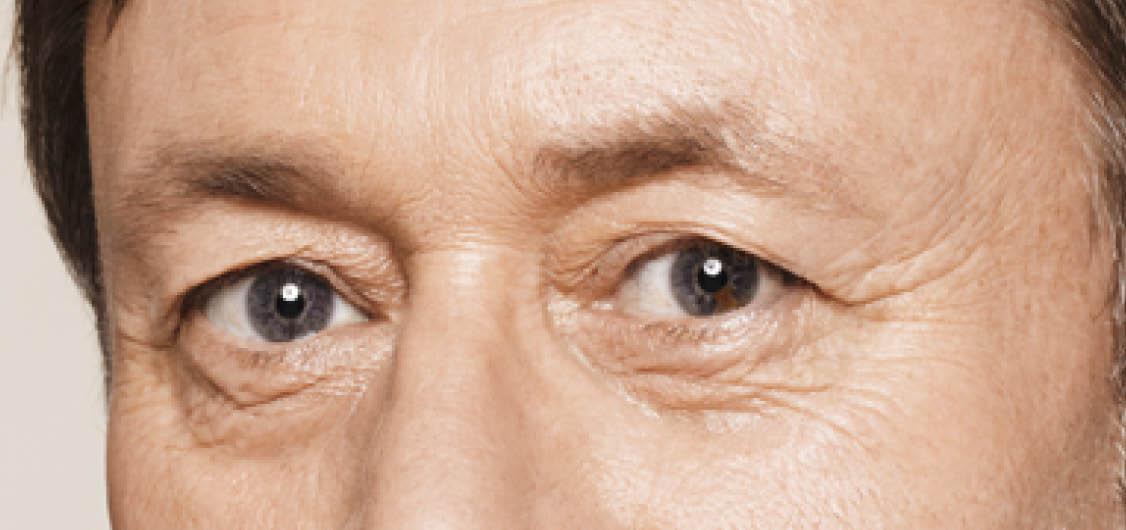 Soft Lump Under Eye – Wonderful Image Gallery