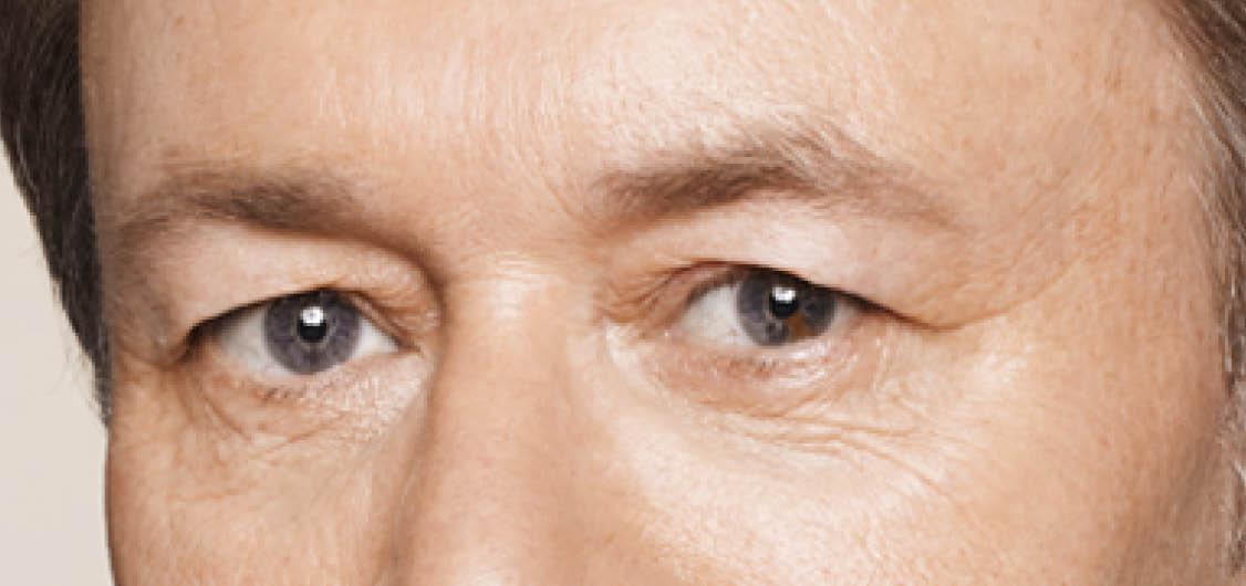 Under Eye Rejuvenation | Dan Kennedy Plastic