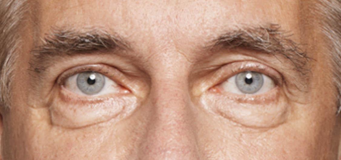 Under Eye Rejuvenation   Dan Kennedy Plastic